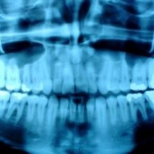 X-rays: A Necessity For Your Oral Health [VIDEO]