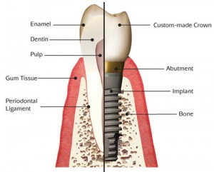 Surrey dental implant
