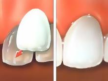 dental veneers surrey dentist