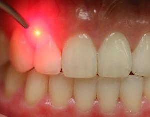 soft tissue laser dentistry Surrey BC
