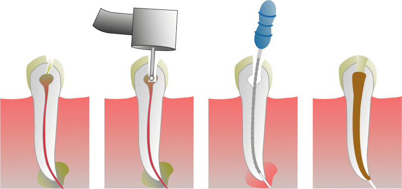 A root canal is a treatment used to repair and save a tooth that is badly decayed   or becomes infected. During a root canal procedure, the nerve and pulp are