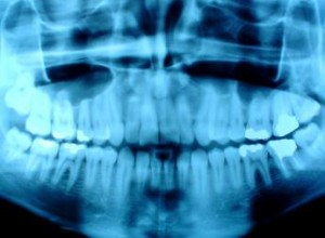 digital xrays evergreen dental centre